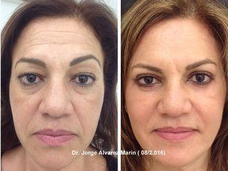 Rejuvenecimiento facial-568241