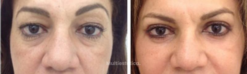 Rejuvenecimiento periocular y Facial