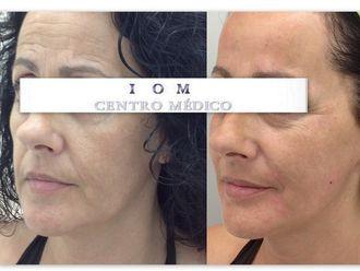 Rejuvenecimiento facial-568242