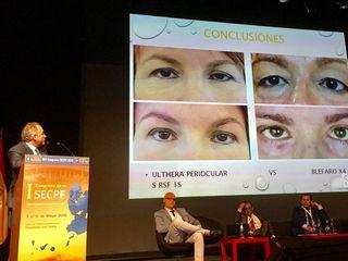 Ponencia del dr. Alvarez-Marín en el congreso de cirugía plástica Rejuvenecimiento periocular