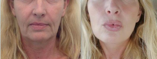 Antes-después rejuvenecimiento facial