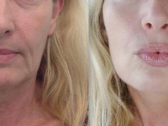 Rejuvenecimiento facial-688322