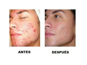 Tratamiento antiacné-565717