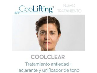 Tratamiento coolclear
