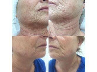 Rejuvenecimiento facial-597992