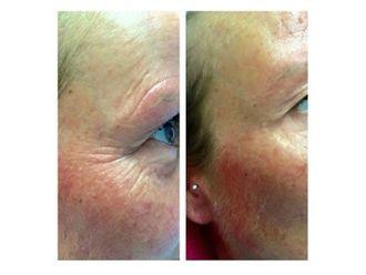 Rejuvenecimiento facial-597993