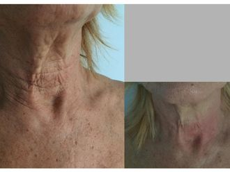 Rejuvenecimiento facial-629160