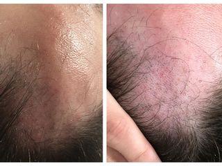 Antes y después alopecia