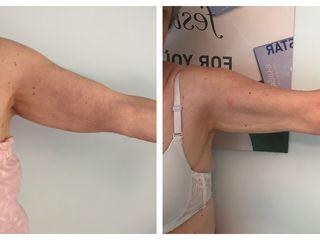 Antes y después tratamiento brazos