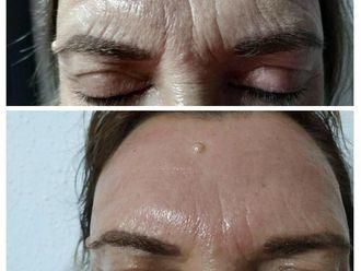 Eliminación arrugas - 642696