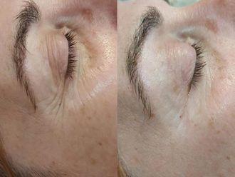 Eliminación arrugas - 642697