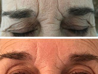 Eliminación arrugas - 642698