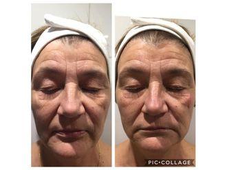 Rejuvenecimiento facial-647686