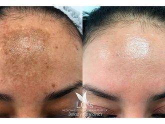 Tratamiento antimanchas-697743