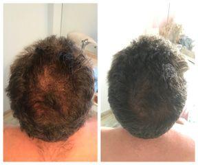 Antes y después Tratamiento capilar - Balneo Estetic Pasbel