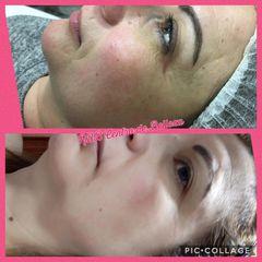 Antes y después Rejuvenecimiento facial - Balneo Estetic Pasbel