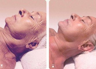 Antes y después Ácido hialurónico - Balneo Estetic Pasbel