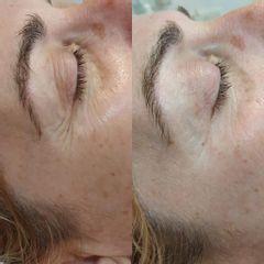 Antes y después Bótox - Balneo Estetic Pasbel