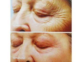 Blefaroplastia sin cirugía-741916