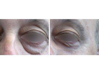 Blefaroplastia sin cirugía-741920