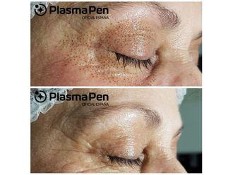 Eliminación arrugas-741923