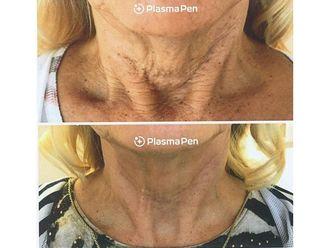 Eliminación arrugas-741926