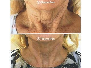 Eliminación de arrugas con Plasma Pen - Balneo Estetic Pasbel