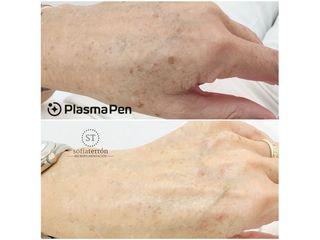 Eliminación de manchas con Plasma Pen - Balneo Estetic Pasbel