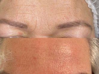 Eliminación arrugas - 791352