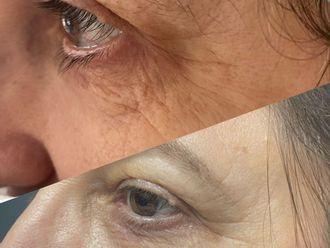 Eliminación arrugas - 791353