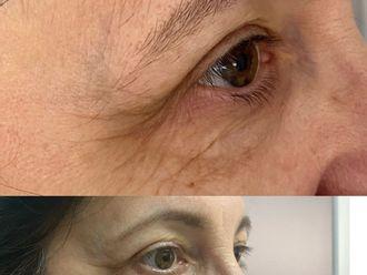 Eliminación arrugas - 791354