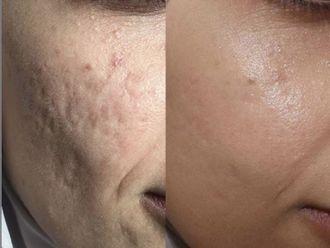 Tratamiento antiacné - 791357
