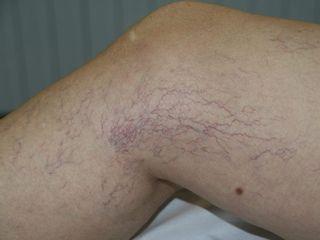 Tratamiento de varicosidades con Láser y esclerosis