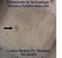 CENTRO MEDICO ESTETICO DEL DR. MONTERO