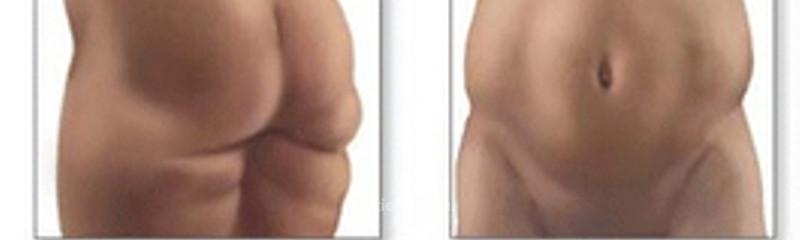 Tratamientos Obesidad y Sobrepeso