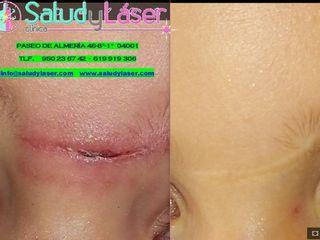 Antes y después cicatrices