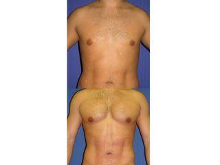 Antes y después Aumento de pectorales
