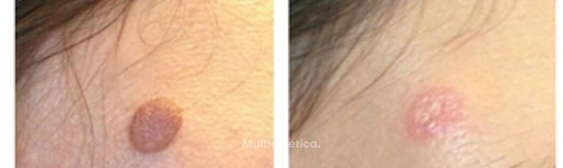 Eliminación-verruga-antes y después