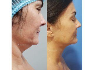 Liposucción de papada - Dr. Quintero