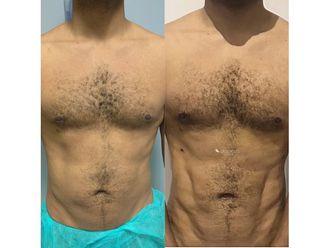 Marcación abdominal-694816