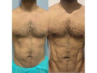 Marcación Abdominal - Dr. Quintero