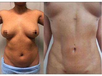 Abdominoplastia-694818