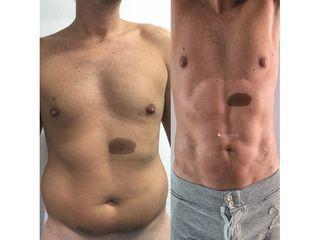 Abdominoplastia - Dr. Quintero