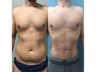 Marcación abdominal-694846