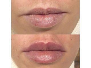 Aumento de labios - Dr. Quintero