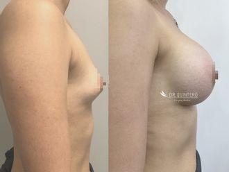 Cirugía estética-737684