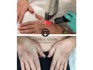 Tratamiento antimanchas - Dra. Maria Dolores Anton Rico