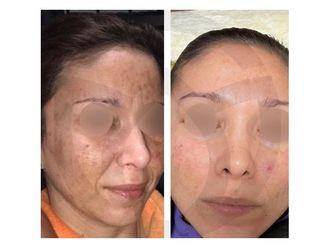 Dermatología-739017