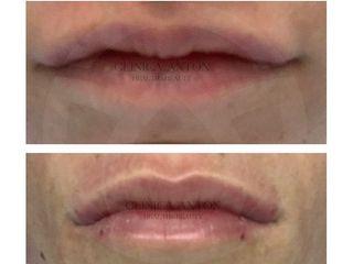 Aumento de labios - Dra. Maria Dolores Anton Rico