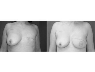 Cirugía reconstructiva - 499910